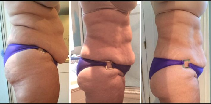 The FasciaBlaster® can make you smaller!!! The visceral fascia binds to the muscles and every other structure it its way. It also traps inflammation like water in a Ziploc bag. The FasciaBlaster® BREAKS UP the fascial adhesions and general tightness that causes round bellies! This is an instant result and it feels so much better! AshleyBlackGuru.com/fat-loss