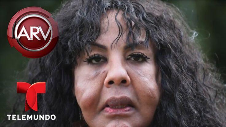 Recupera su cara mujer conocida como Rostro de Cemento   Al Rojo Vivo   ...