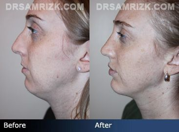 Before and after photo of a 26 year old female patient who had a rhinoplasty to …