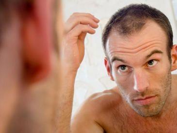 El nombre genérico de Rogaine es minoxidil tópico, y el nombre genérico de Propecia es el Finasteride. Rogaine es un remedio para la pérdida del cabello sin receta que viene en una solución tópica a base de alcohol, ya sea en regular (2 por ciento) o mayor resistencia (5 por ciento). La fuerza adicional de Rogaine sólo se diseñó para ser utilizado por los hombres, mientras que el 2 por ciento de Rogaine también puede ser utilizado por las mujeres. http://rogaine-minoxidil.org