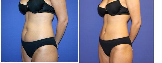 Photos avant et après la liposuccion:  #liposuccion