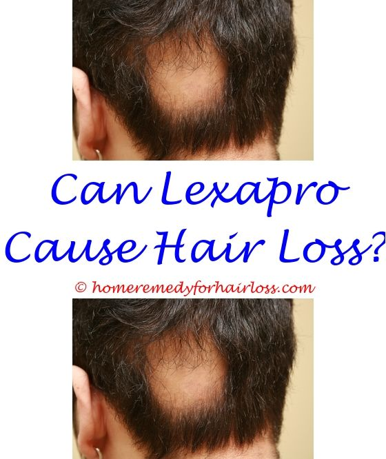 what prevents loss of hair - hair loss at 20 girl.gianvi hair loss cause of excessive hair loss in dogs prevent hair loss after gastric sleeve 2632163940