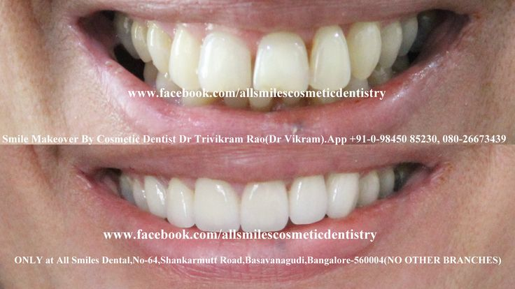 Smile makeovers by expert cosmetic dentist Dr Trivikram in Bangalore.Crowded teeth, chipped, stained, crooked teeth or gaps between teeth can be corrected without any braces/clips in 7-10 days. PH +91-0- 98450 85230.080-26673439.More at http://www.allsmilesdc.org/cosmetic-dentistry/