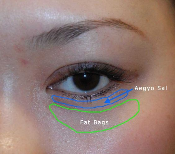 Bellevue Dr. Philip Young presents Aegyo Sal a new asian plastic surgery technique. Aegyo Sal is a relatively new technique in the world of Asian Plastic Surgery that entails creating fullness under the eyelashes to make the eyes look bigger. #asianeyelid #plasticsurgery