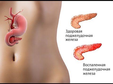 Панкреатит что это такое? Как лечить панкреатит? Панкреатит симптомы лечение диета. - YouTube