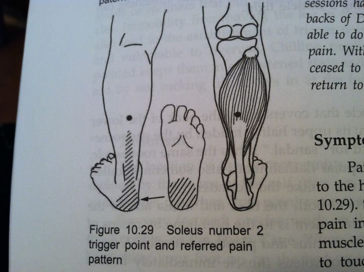 Journey To My New Me: Healing Heel Pain (aka Plantar Fascitis) Through Trigger Point Therapy