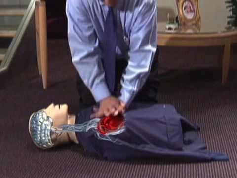 Continuous Chest Compression CPR—University of Arizona Sarver Heart Center. This is a simpler form of traditional CPR. Anyone can do it!