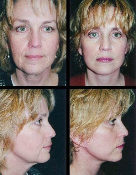 Facial Restoration Workouts To Tighten Droopy Face Skin And Eliminate Face Wrinkles And Furrows