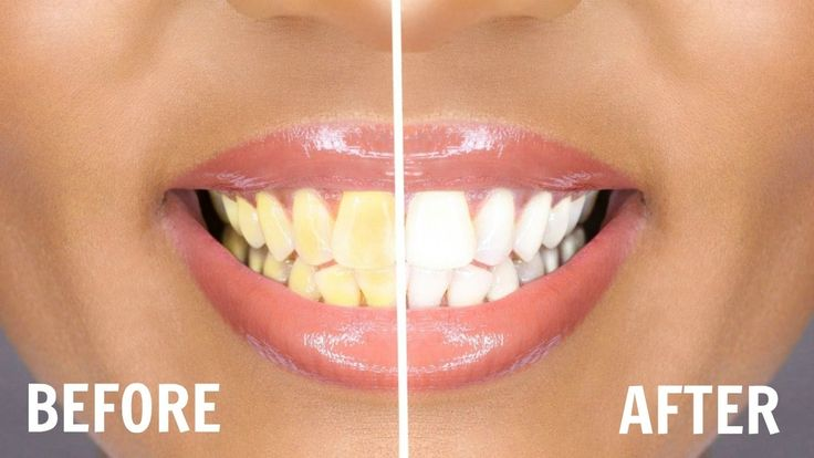 HOW TO WHITEN TEETH AT HOME | INSTANT TEETH WHITENING | OMABELLETV