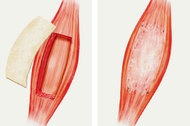 Human Muscle Regenerated With Animal Help - NYTimes.com