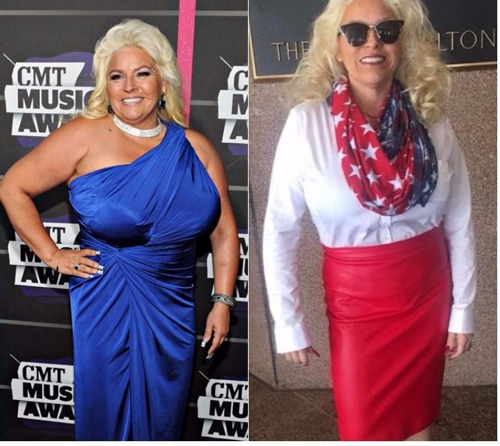 Beth Chapman Before And After In 2019 Dog The Bounty