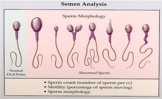 sperm abnormal Conceiving thith