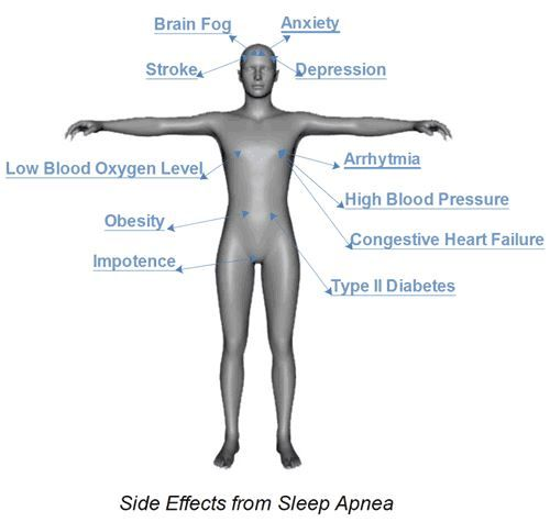 Photo: Graphic Representation of Sleep #Apnea Side Effects