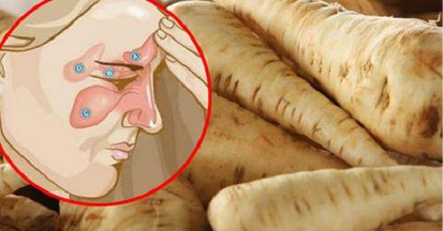Come combattere l'infezione dei seni paranasali in 5 giorni e liberarsi del mal di testa - Vivere Più Sani