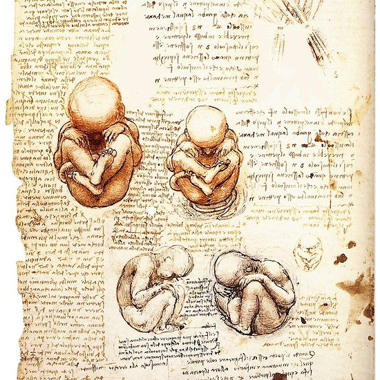Views of a Fetus in the Womb,Ob-Gyn Medical Collection #obgyn #medical #womb #leonardodavinci #anatomy #drawings #antique #baby #fetus #fetuses