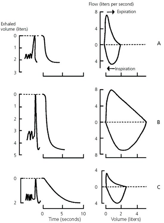 An Approach To Interpreting Spirometry American Family