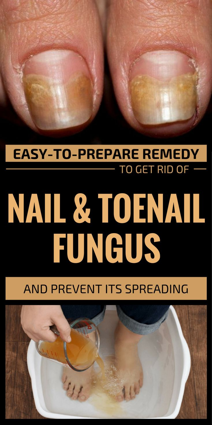 Most of the time those suffering of nail of toenail fungus start buying various chemical-containing creams in order to remove the fungus. The problem is that getting rid of this problem is long-lasting, and most of the time these chemical creams don't show any improvement. The following recipe to get rid of nail and toenail …
