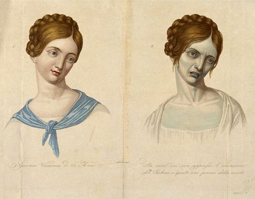 """Twenty-three year old Viennese woman, before and after contracting cholera. One mid-19th century report describes cholera victims who were """"one minute warm, palpitating, human organisms - the next a sort of galvanized corpse, with icy breath, stopped pulse and blood congealed - blue, shrivelled up, convulsed"""". Cholera causes profuse vomiting and diarrhoea, dehydrating the body so rapidly and severely that the blood thickens and the skin becomes deathlike and blue."""