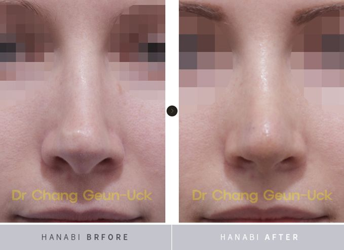 The Correction Of Nasal Tip Cartilage Visible Problem