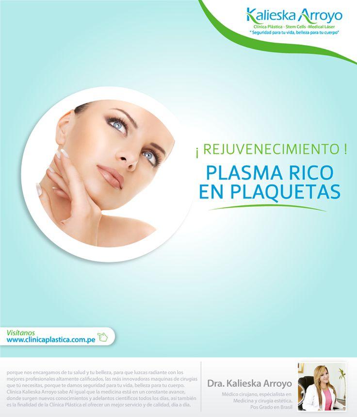 Kalieska Arroyo | Rejuvenecimiento. Plasma rico en plaquetas.