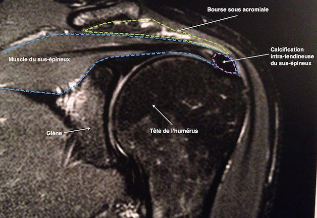 IRM d'une calcification du tendon du sus-épineux