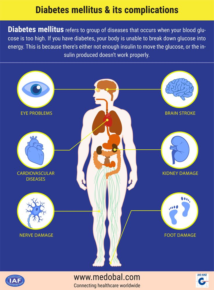 Diabetes mellitus and its complications  Diabetes mellitus (DM), commonly referred to as diabetes, is a group of metabolic diseases in which there are high blood sugar levels over a prolonged period.  Visit: www.medobal.com  #DM #DiabetesMellitus #Diabetes #BloodSugar #BloodSugarDiet #Medobal #MedicalHelp #MedicalTourism #QualityTreatment #AffordableTreatment #MedicalAssistance #BestHospital #BestDoctors #Travel #Visit #Treatment #Recovery #ReturnHealthy #SriLanka #India #Nigeria #Tunisia…