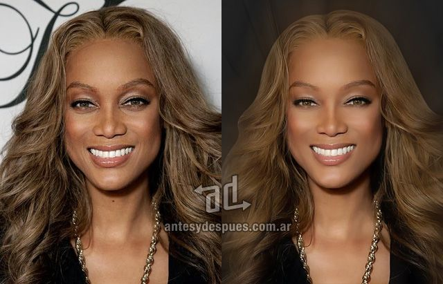 Plastic Surgery Before and After Photos | ASPS