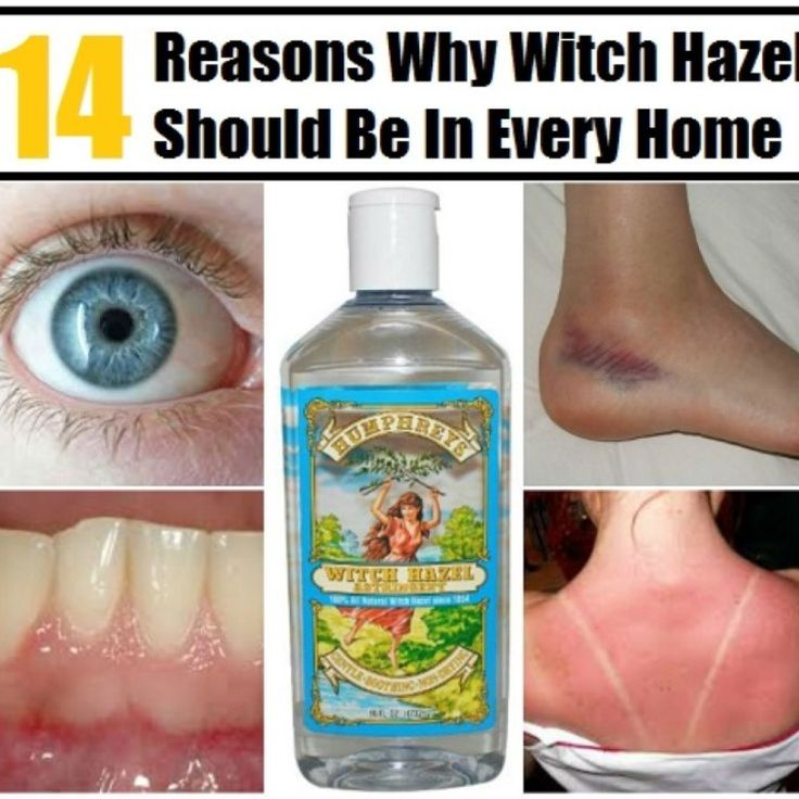 Witch hazel was used by Native American Indians for years as a natural health remedy, and nowadays it is widely used for everyday purposes. From cleaning your face to soothing sunburn, witch hazel is an amazing natural remedy which you should always have on hand in your cabinet. 14 Reasons Why...