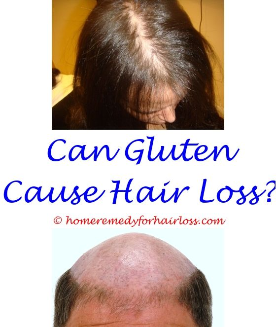 can pravastatin cause hair loss - cold laser hair loss treatment.vegetarian hair loss solution green tea on hair loss seborrhoeic dermatitis and hair loss 9170442603
