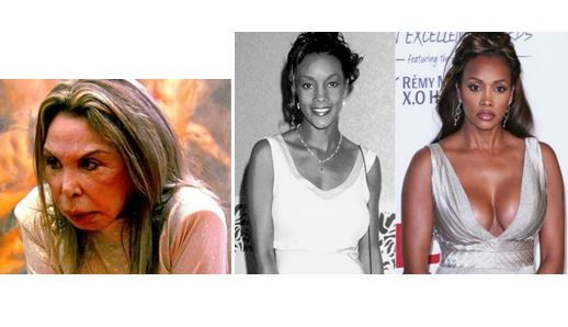 10 celebrities who ruined their lives with plastic surgery –