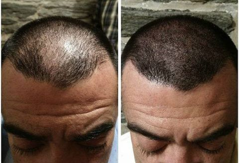 Scalp Micropigmentation now in #Hyderabad  #ScalpMicropigmentation now in Hyderabad at #Riyaanz. #ScalpMicropigmentation offers a non-surgical alternative to invasive hair transplant surgery in Hyderabad. Scalp Micropigmentation is used to: (1) correcting total #baldness; (2) adding density post hair transplant surgery; (3) camouflaging hair transplant scars; (4) concealing thinning hair; and (5) camouflaging alopecia areata.