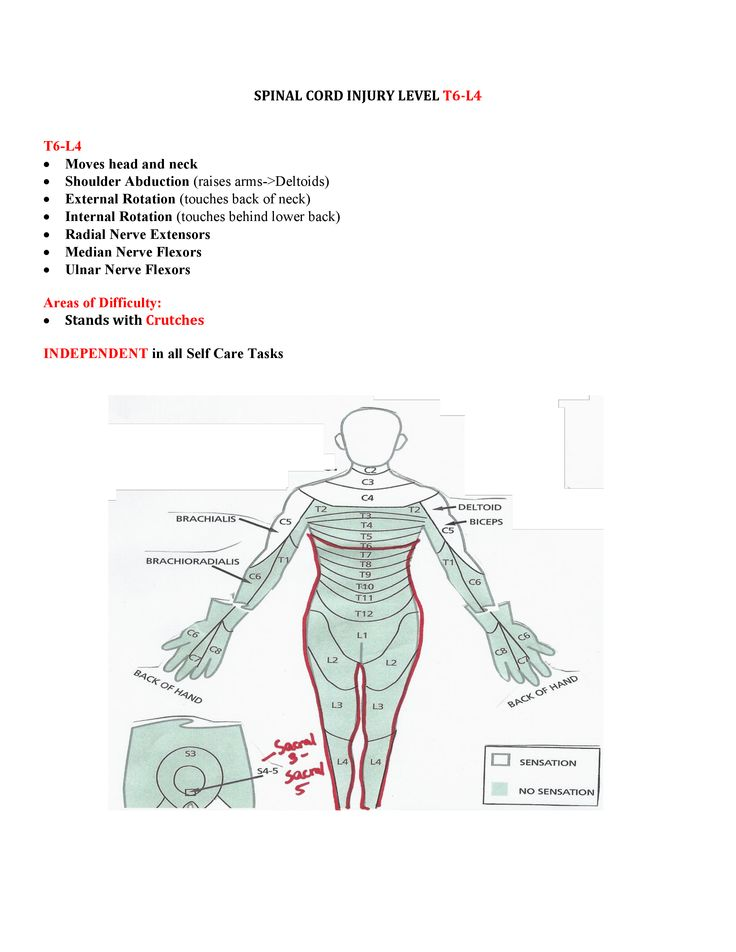 spinal cord injuries Acute spinal cord injury (sci) is caused by a trauma to the cervical or thoracic spine spinal cord injuries can be either complete or incomplete.