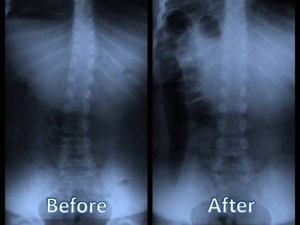 What is the difference between Osteopathic Physicians and Chiropractors?  Here is another F.A.Q.  Osteopathic History:  Osteopathic Medicine is based upon a science of healing discovered by Andrew Taylor Still MD in 1874. Dr. Still based this new science upon an absolute faith in a human beings innate capacity for self healing and a belief that if the Osteopath could remove the obstructions in the system nature would provide the healing. It was his view that what we call disease is really…