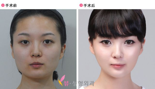Korean Plastic Surgery Before and After Check out what I found on the internet