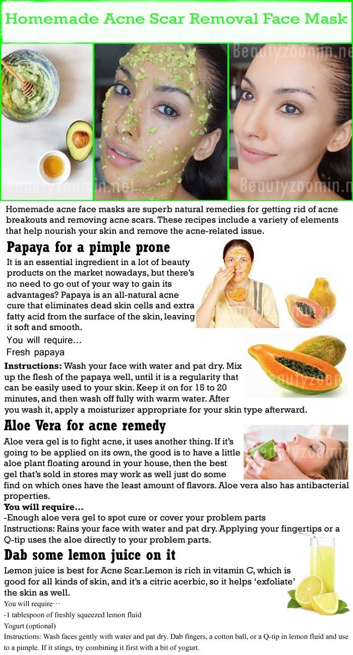 Homemade acne face masks are superb natural remedies for getting rid of acne breakouts and removing acne scars. These recipes include a variety of elements that help nourish your skin and remove the acne-related issue.