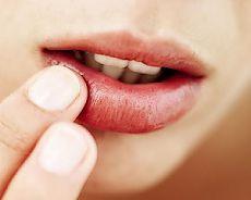 Эффективные средства от герпеса (простуды) на губах