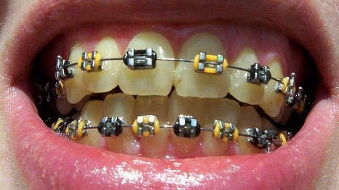 Black And Yellow Braces Colors Braces Teeth Braces