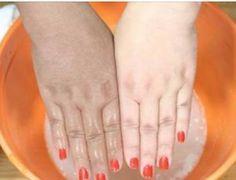 Sabe as manchas marrons que aparecem no rosto?Elas são chamadas de melasma.Trata-se de um distúrbio hormonal que pode surgir com a gravidez ou pelo uso de pílulas