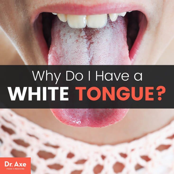 Why Do I Have A White Tongue Your Body S Trying To Tell