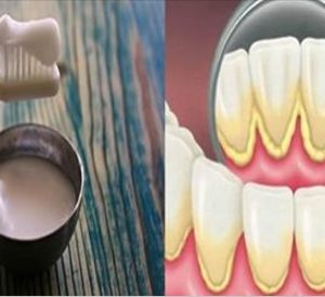 Dentists Hide This From The Public! This Simple Mixture Can Remove The Plaque From Your Teeth In Just A Couple Of Days!