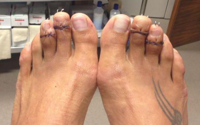 Nuova moda in Inghilterra dove le donne si accorciano le dita dei piedi per indossare meglio i tacchi! #ditadeipiedi #donna #moda #inghilterra