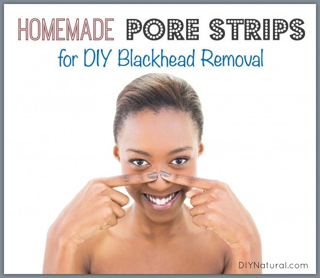 These homemade pore strips will make your DIY blackhead removal much less expensive! All you need is a bit of gelatin, milk, and essential oil. Easy peasy!