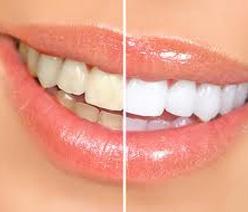 Considerations before choosing the best teeth whitening kitsHome Remedies, Most Popular, Beautiful, White Teeth, Teethwhitening, Baking Sodas, Whiter Teeth, Natural Teeth Whitening, Nature Teeth Whitening