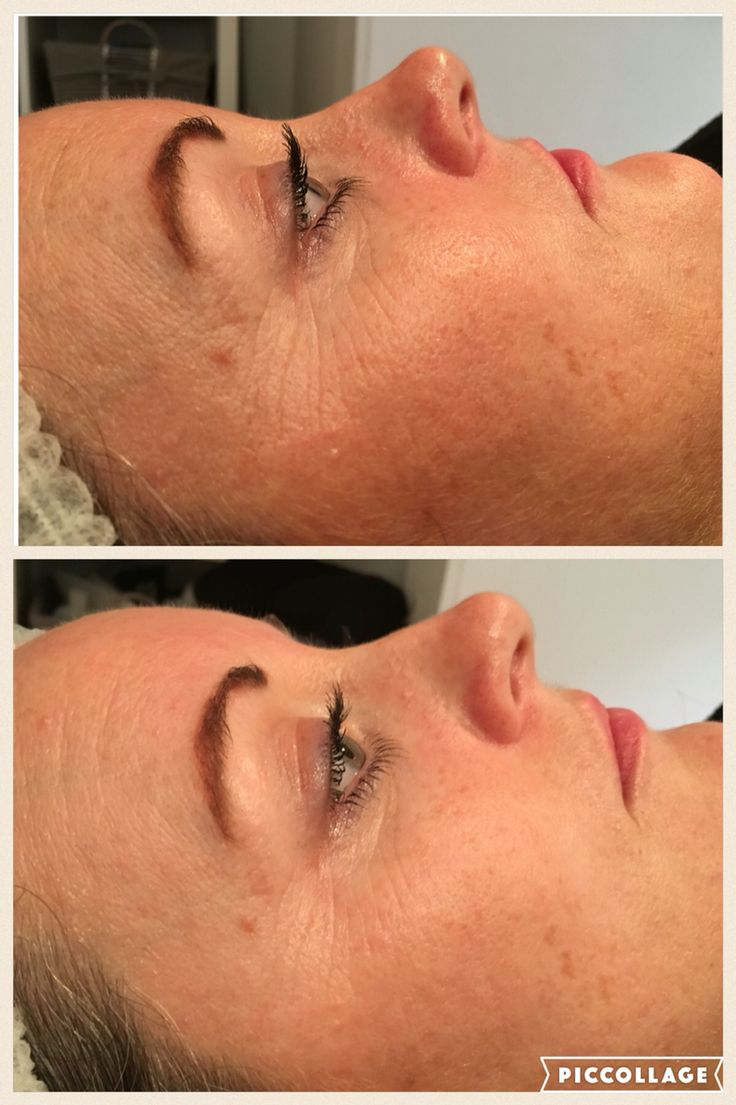 Anti ageing facial
