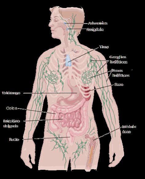 ¿Qué es el linfoma no Hodgkin?