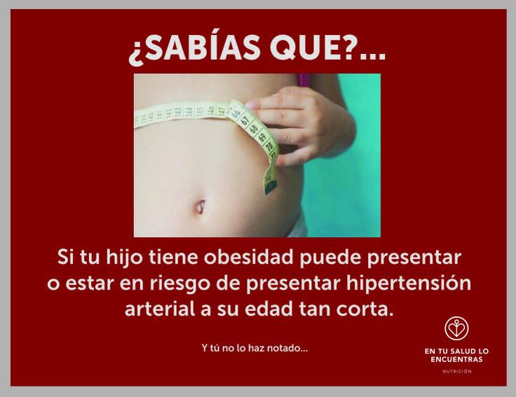 Obesidad infantil   niños   nutrición infantil