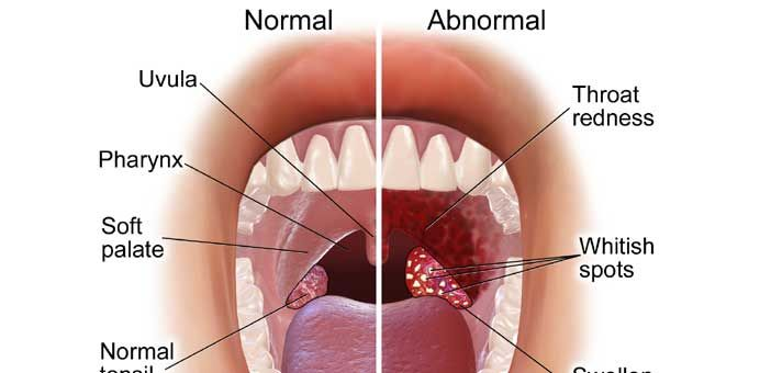 Remedies for Swollen Tonsils in Adults.