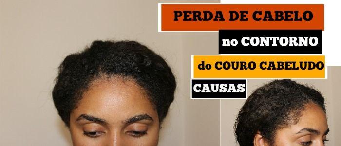 Queda de cabelo. Perda de cabelo no contorno do cabelo. Perda de cabelo à frente. Perda de cabelo pela raiz. Alopecia. Calvície. Cabelo. Cabelo desfrisado. Cabelo quimicamente tratado. Jornada capilar. Hair journey. O meu cabelo africano