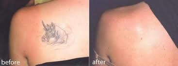 During the laser tattoo removal treatment, you will not feel any pain and that would be a good thing to know.
