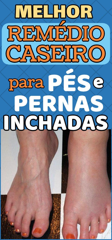 Inchados e doença pés